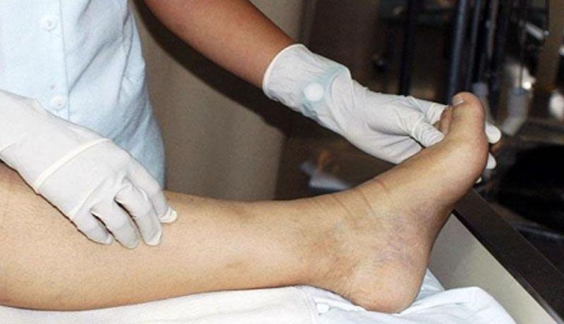 Resultado de imagen para Una terapia eficaz contra úlceras del pie diabético