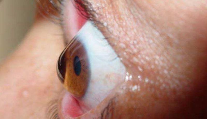faaa21d5a8 Queratocono, enfermedad degenerativa de córneas; urge tratamiento